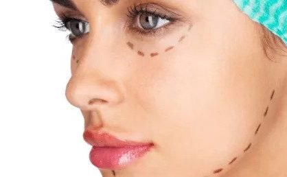 Facelift: Knowing Deep Plane Lift And What To Expect?
