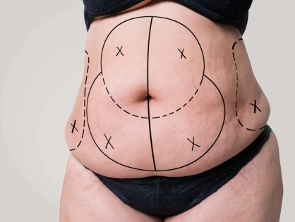 Tummy Tuck: Understanding, Benefits, and Risks