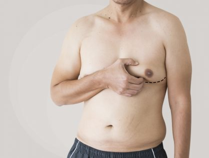 Gynecomastia Surgery- Cause And Procedure