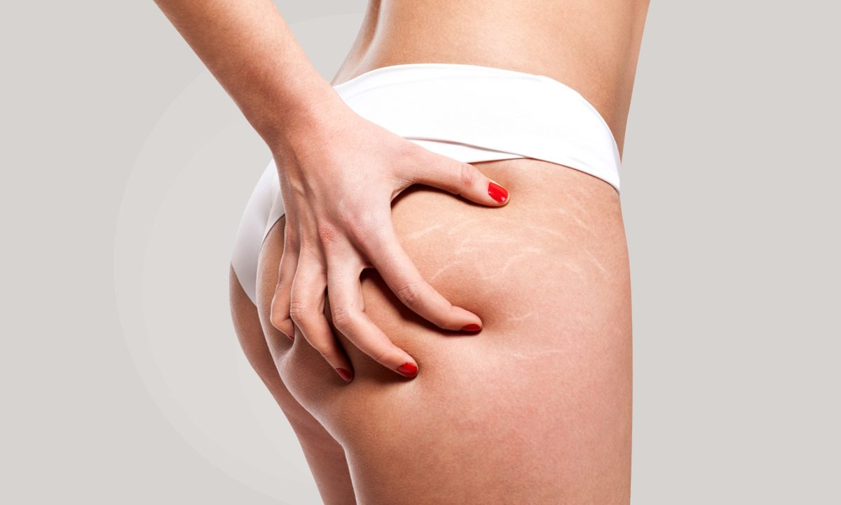 Cellulite And Stretch Marks - Causes And Treatments