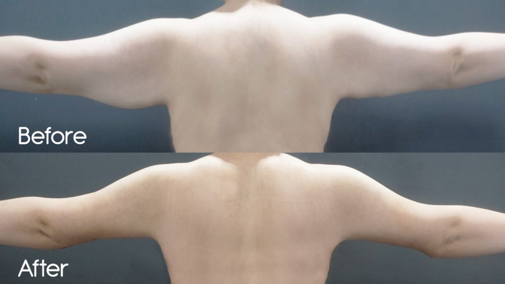 Before and After Comparison of Arm Lift Surgery