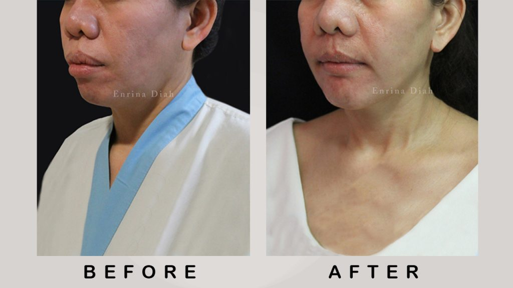 Before & After Jaw Surgery 2