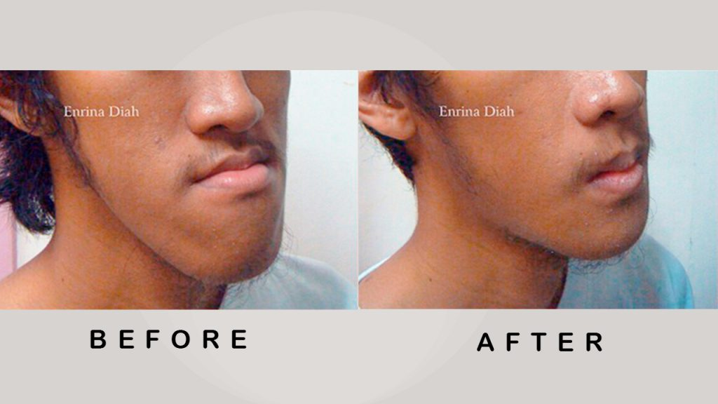 Before & After Jaw Surgery 3
