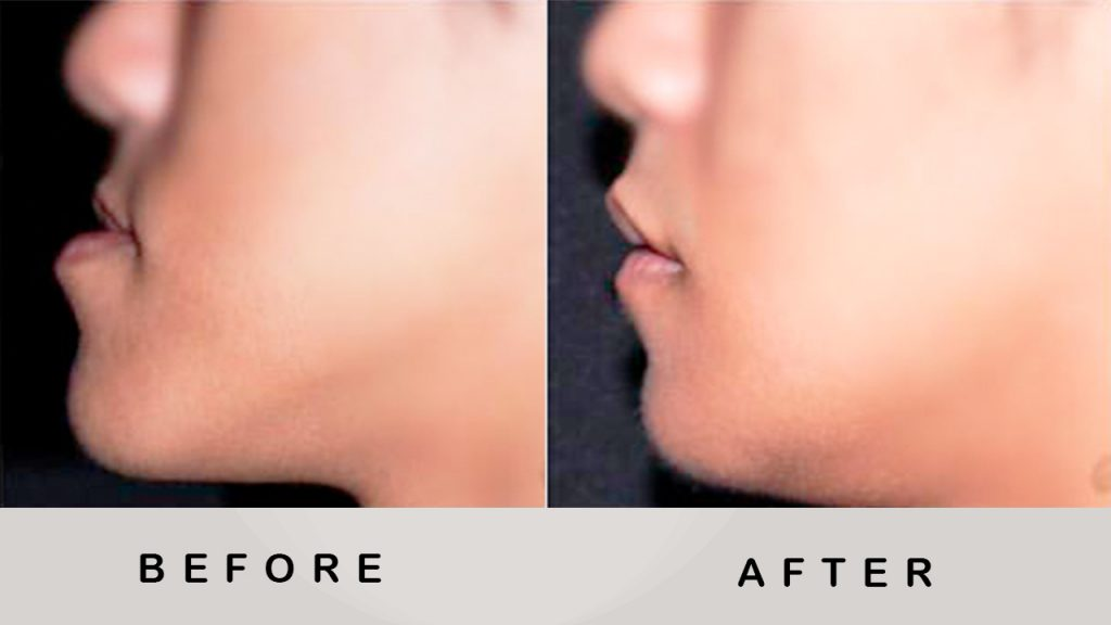 Before & After Jaw Surgery 4
