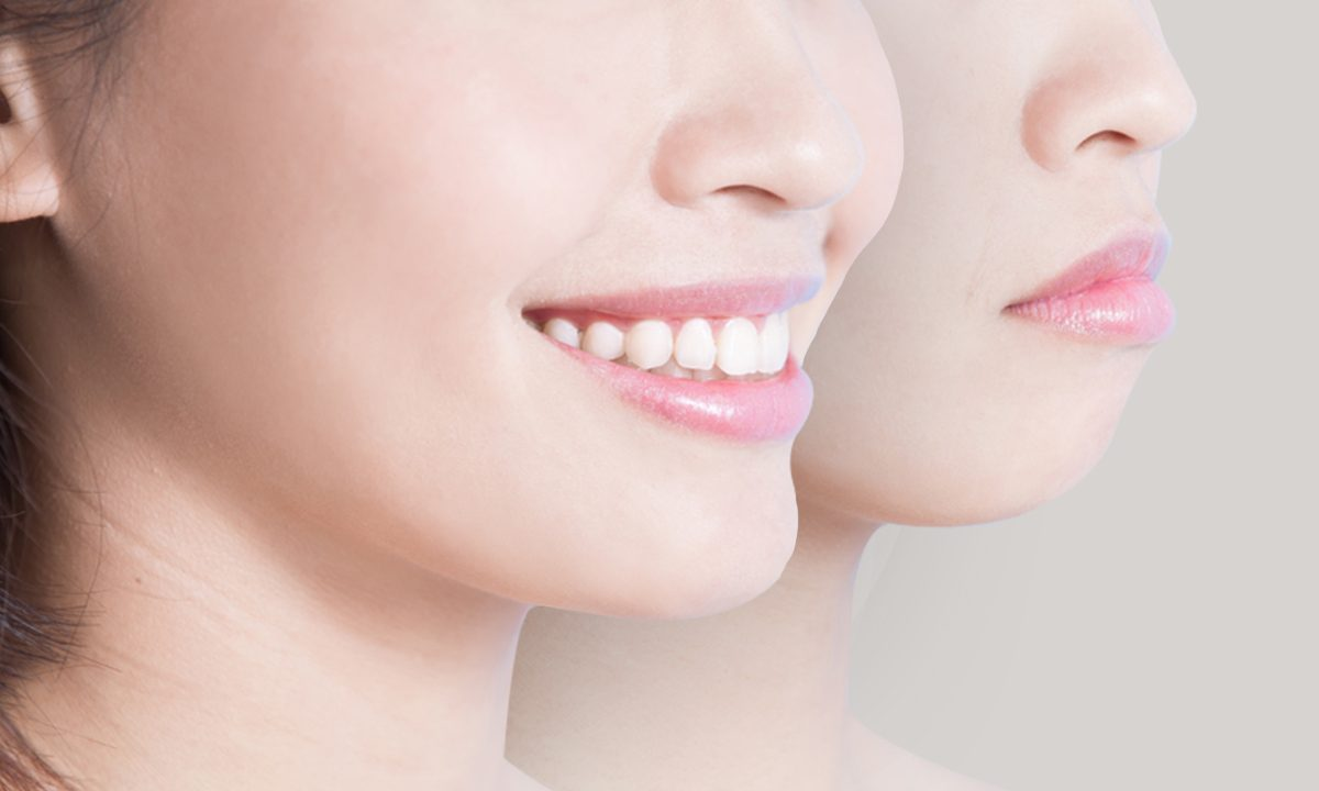 What You Need To Know About Jaw Surgery