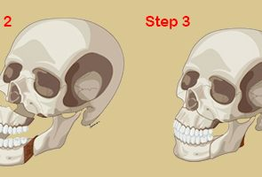 JAW-SURGERY-9-Bimaxillary-3