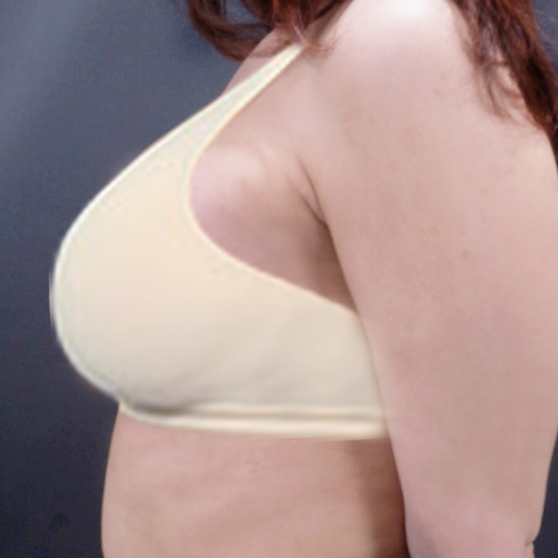 after breast lift image
