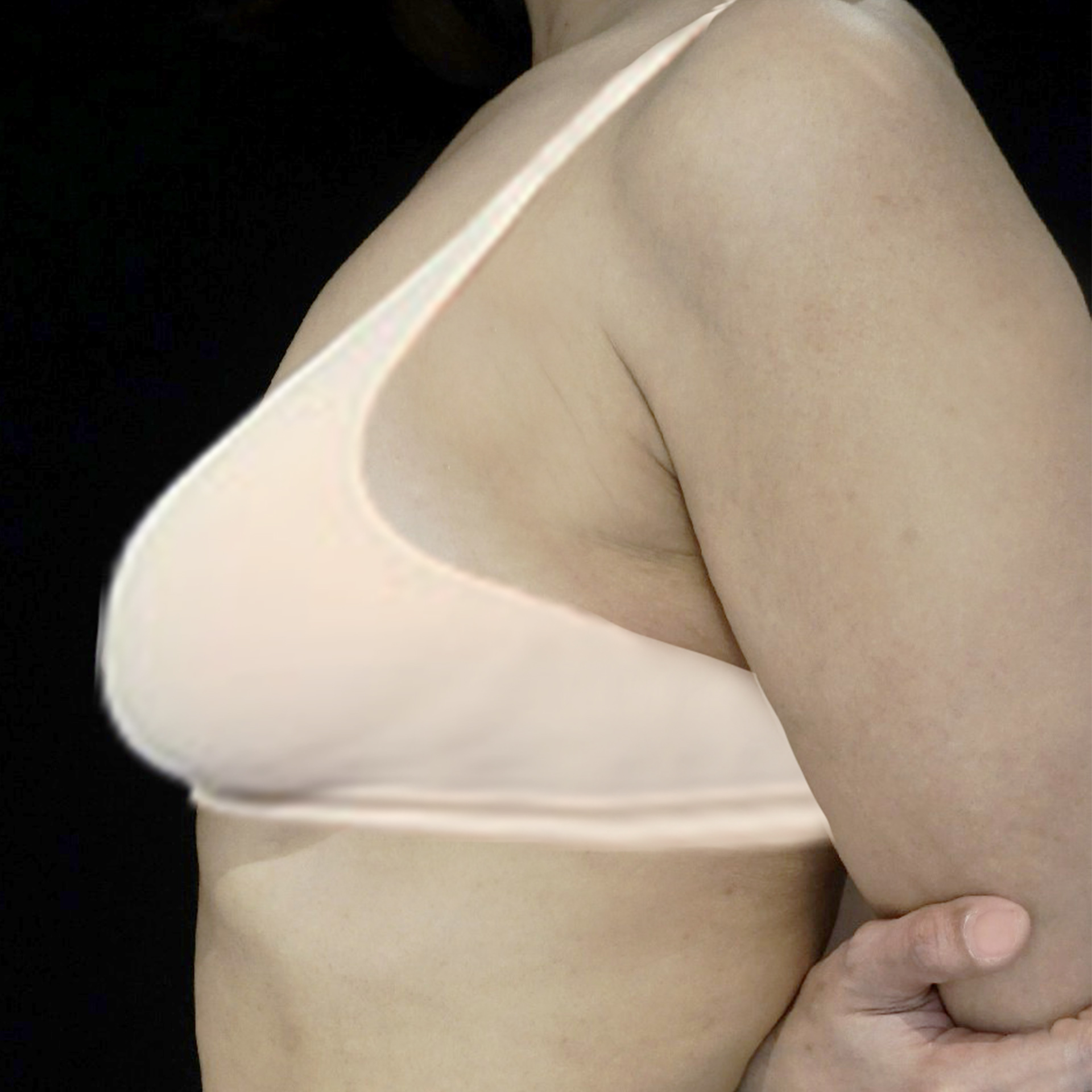 before breast lift image