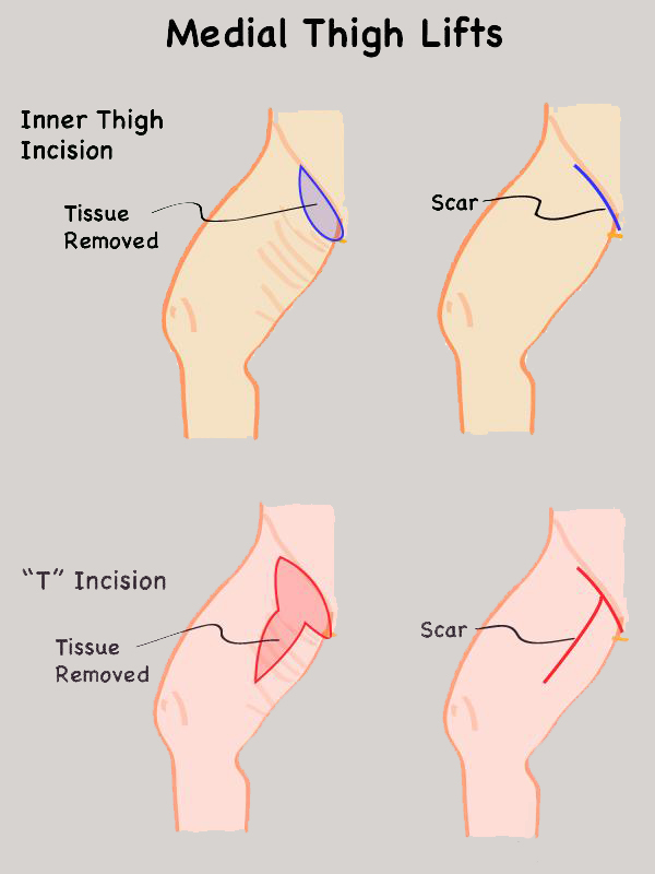 Types of Thigh Lifts