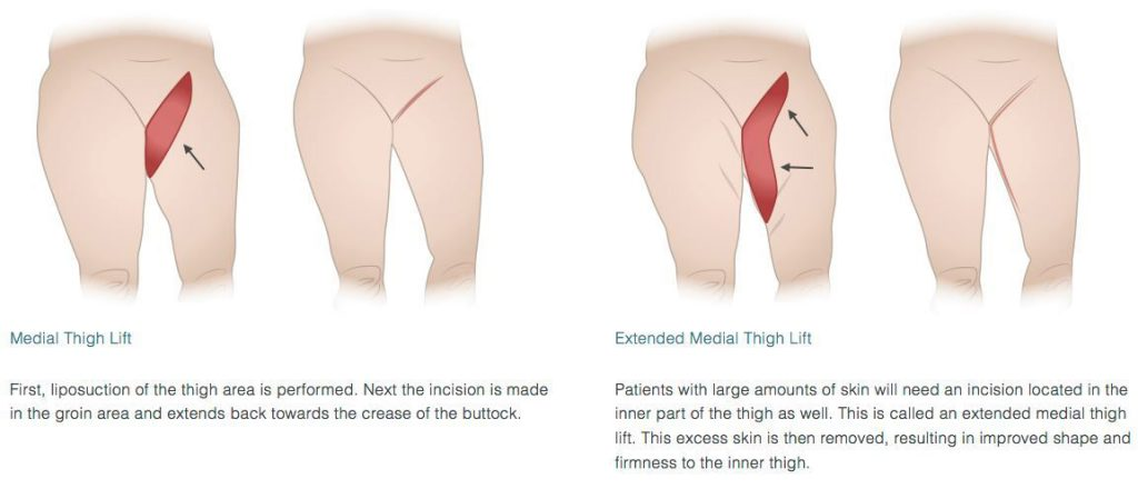Types of Thigh Lift